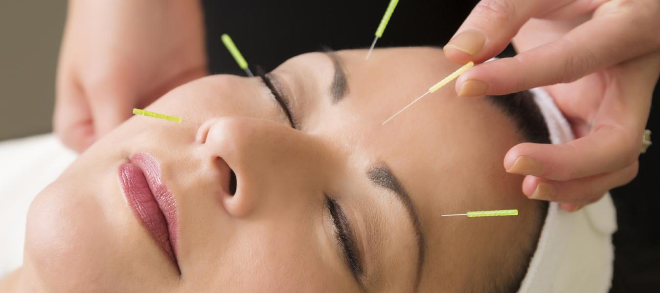 akupunktur-adana1